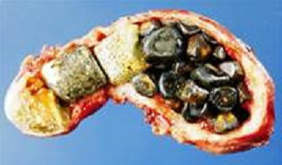 Blog gallstones